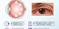 img-glucoma-2