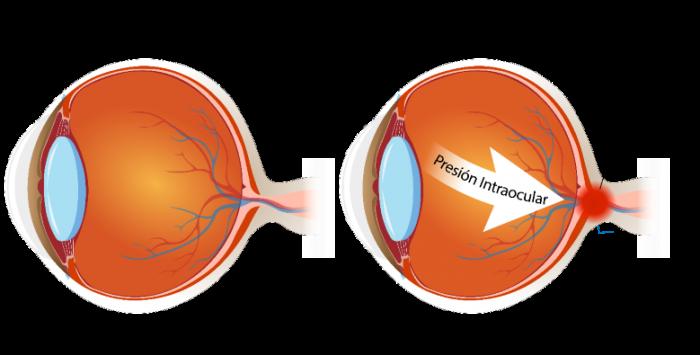 Ojo con galucoma y ojo saludable