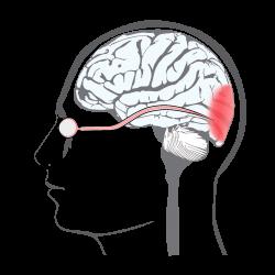imagen nervio óptico