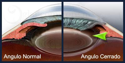Imagen glaucoma angulo cerrado